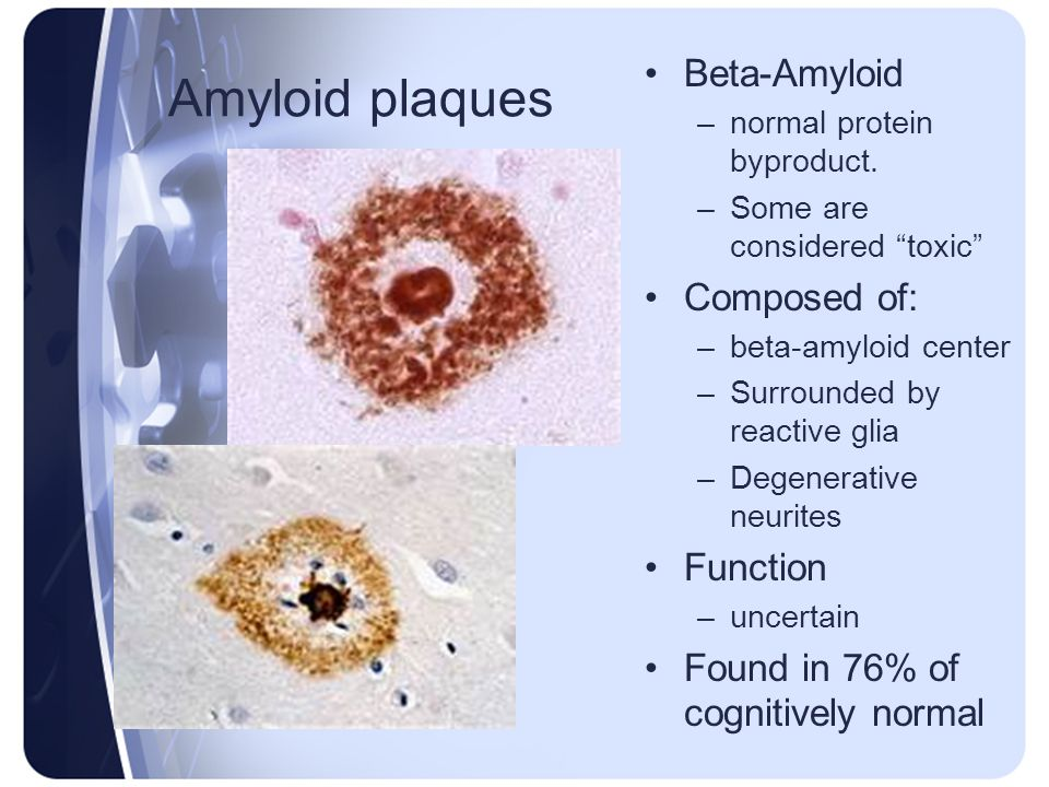 Amyloid plaques Beta-Amyloid Composed of: Function