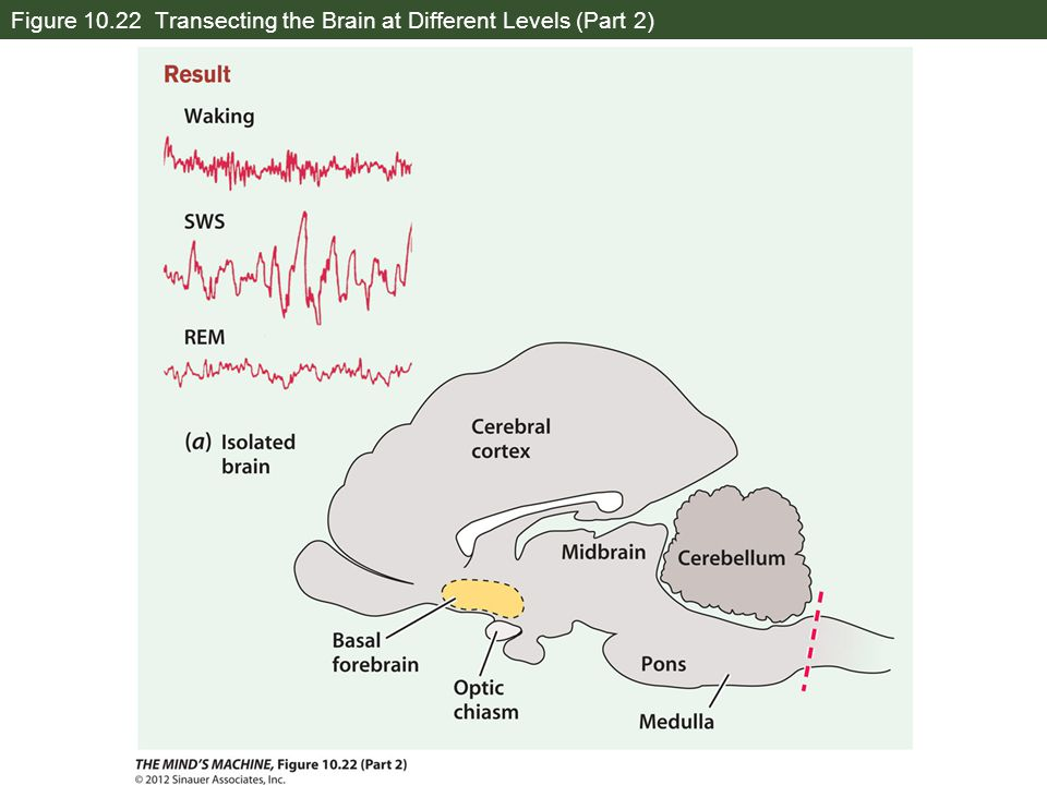 Figure 10.22 Transecting the Brain at Different Levels (Part 2)