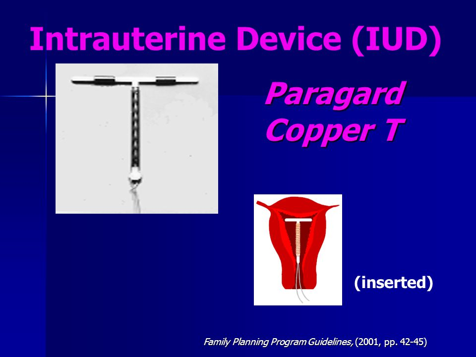 Paragard Copper T Intrauterine Device (IUD) (inserted)