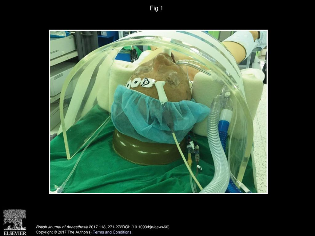 Transparent Acrylic Protector Use For Patient Positioning And