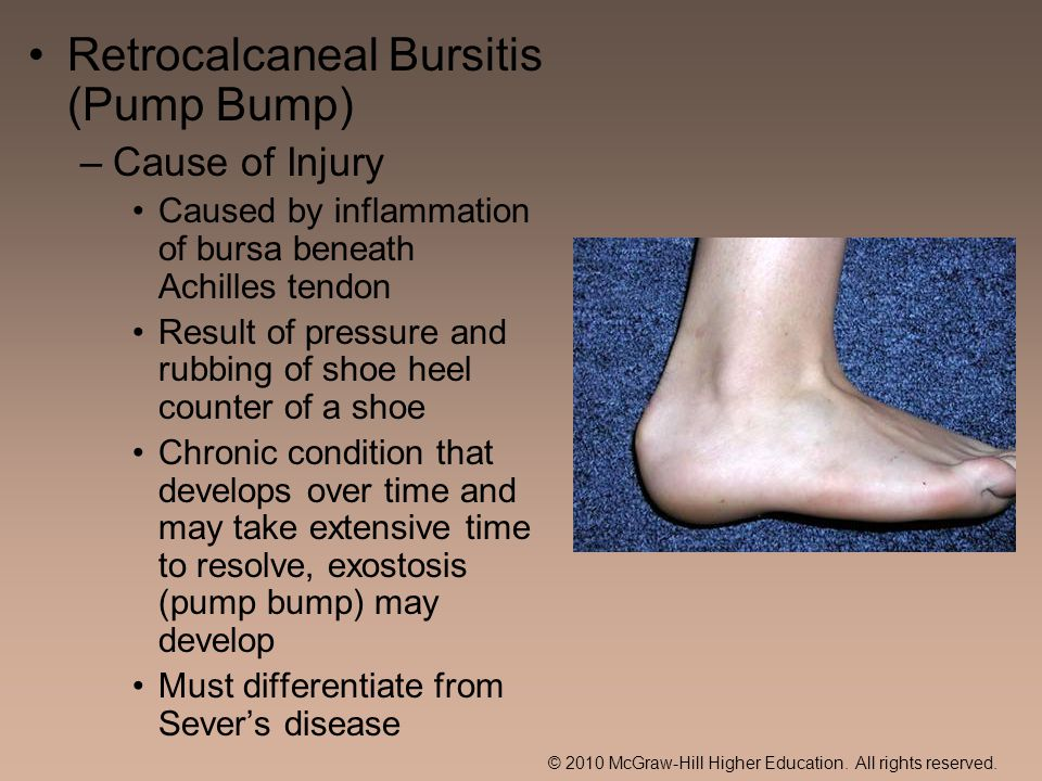 Retrocalcaneal Bursitis (Pump Bump)