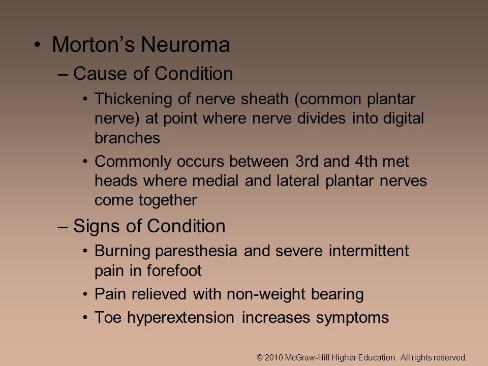 Morton's Neuroma Cause of Condition Signs of Condition
