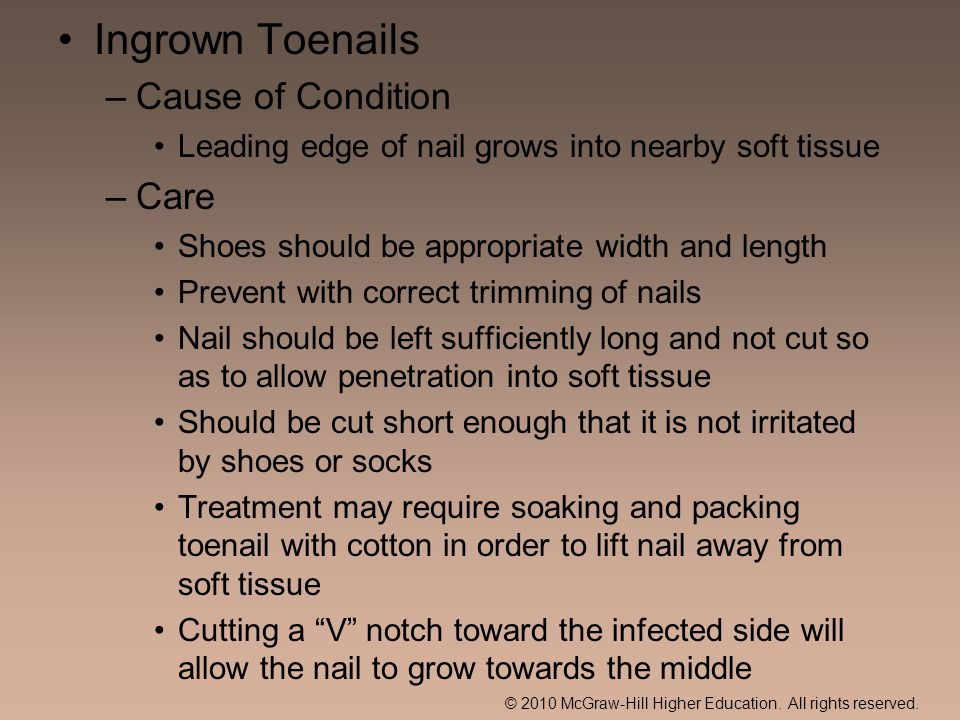 Ingrown Toenails Cause of Condition Care