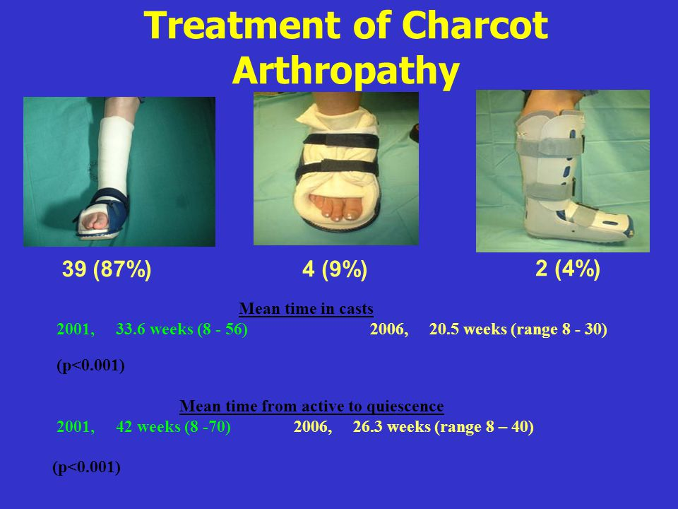 Treatment of Charcot Arthropathy