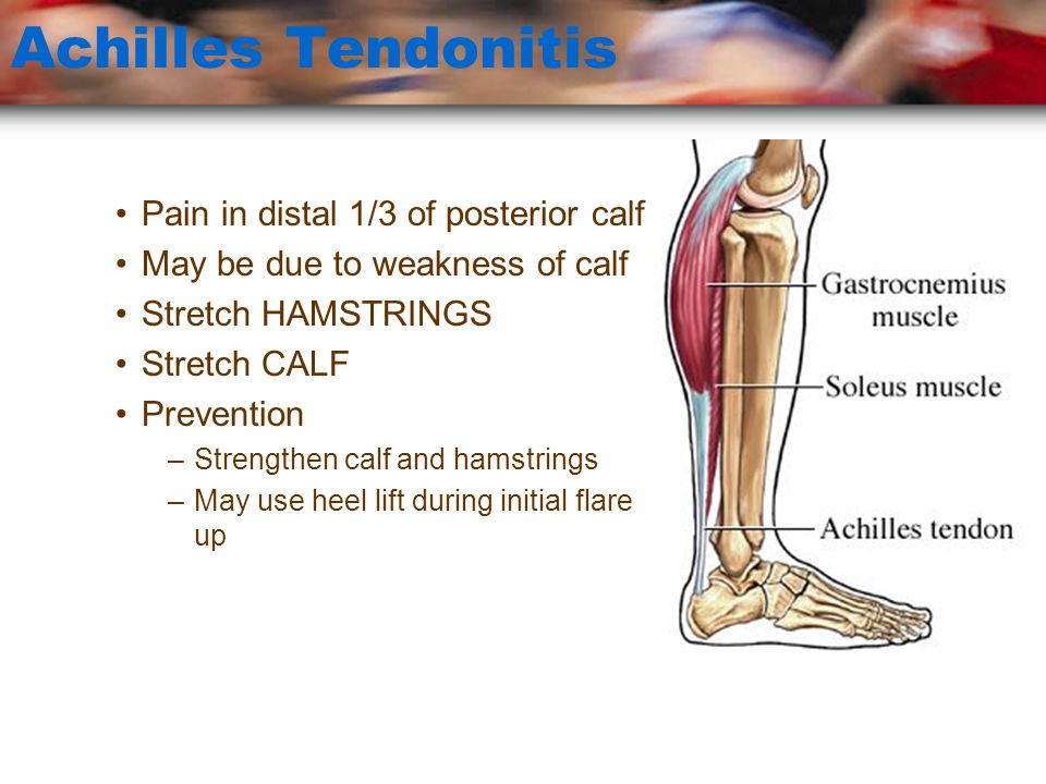 Achilles Tendonitis Pain in distal 1/3 of posterior calf
