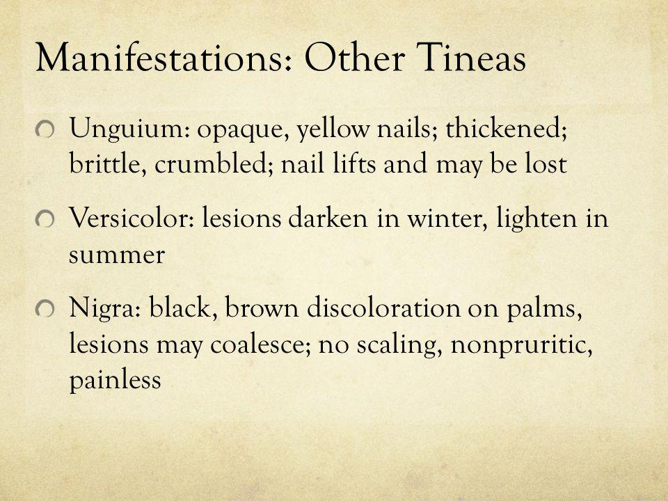 Manifestations: Other Tineas