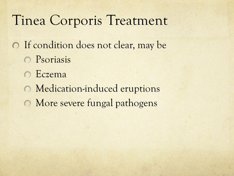 Tinea Corporis Treatment