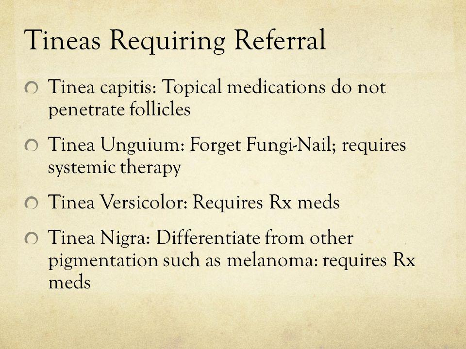 Tineas Requiring Referral