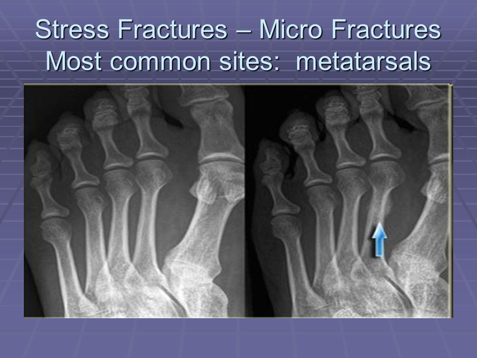 Stress Fractures – Micro Fractures Most common sites: metatarsals