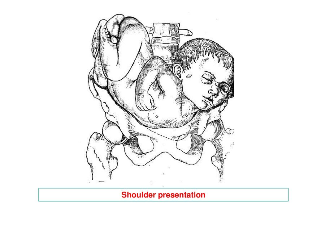 fetus positions in uterus ii ppt download Simple Wallpaper for PowerPoint Presentation 7 shoulder presentation