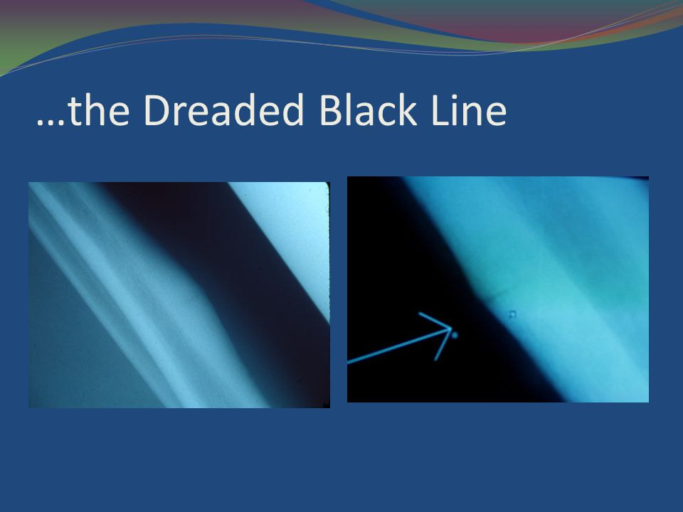 …the Dreaded Black Line