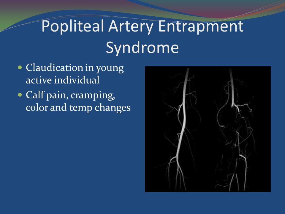 Popliteal Artery Entrapment Syndrome