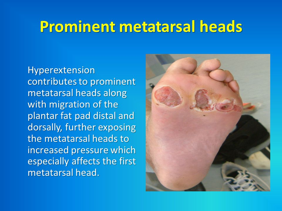 Prominent metatarsal heads