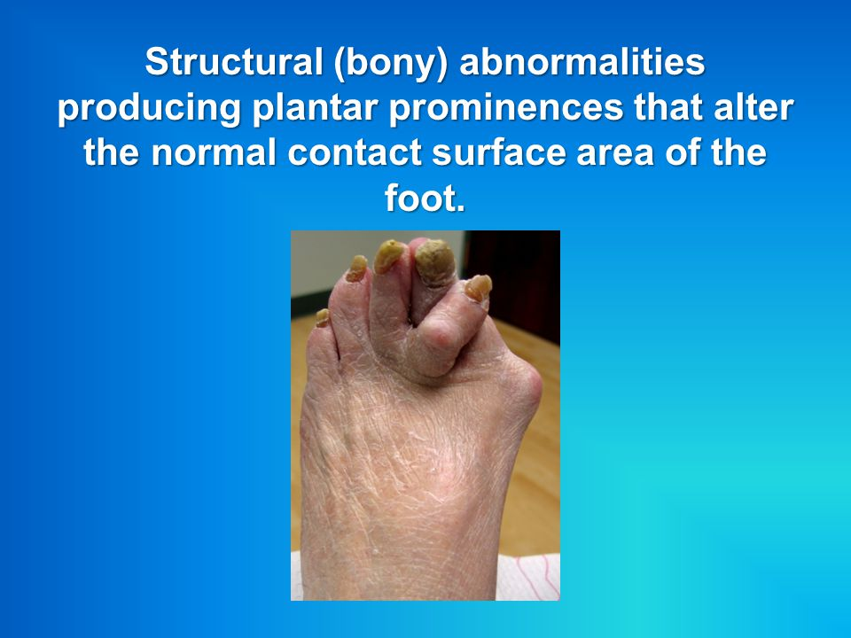 Structural (bony) abnormalities producing plantar prominences that alter the normal contact surface area of the foot.
