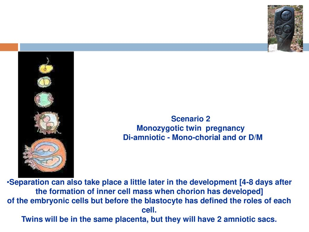 Multiple Pregnancy  - ppt download
