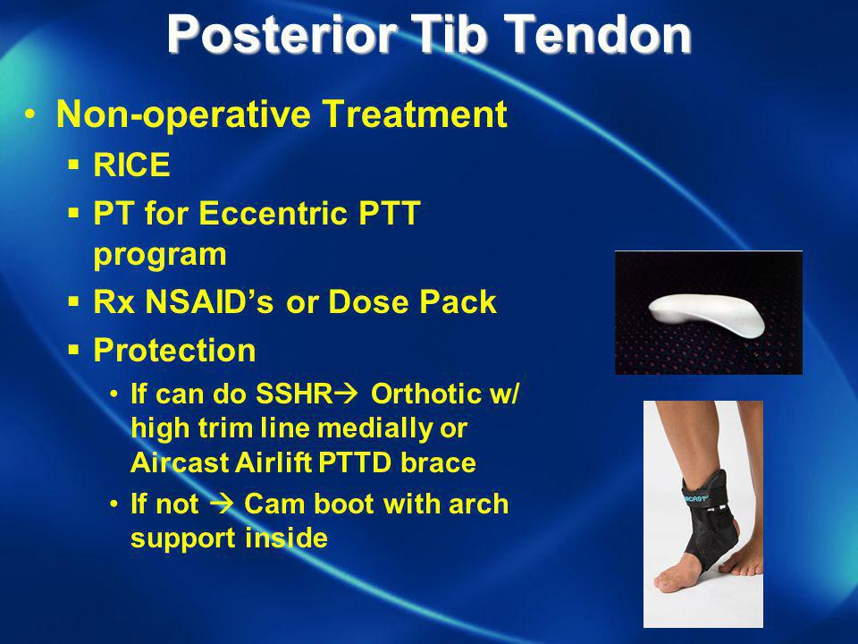 Posterior Tib Tendon Non-operative Treatment RICE