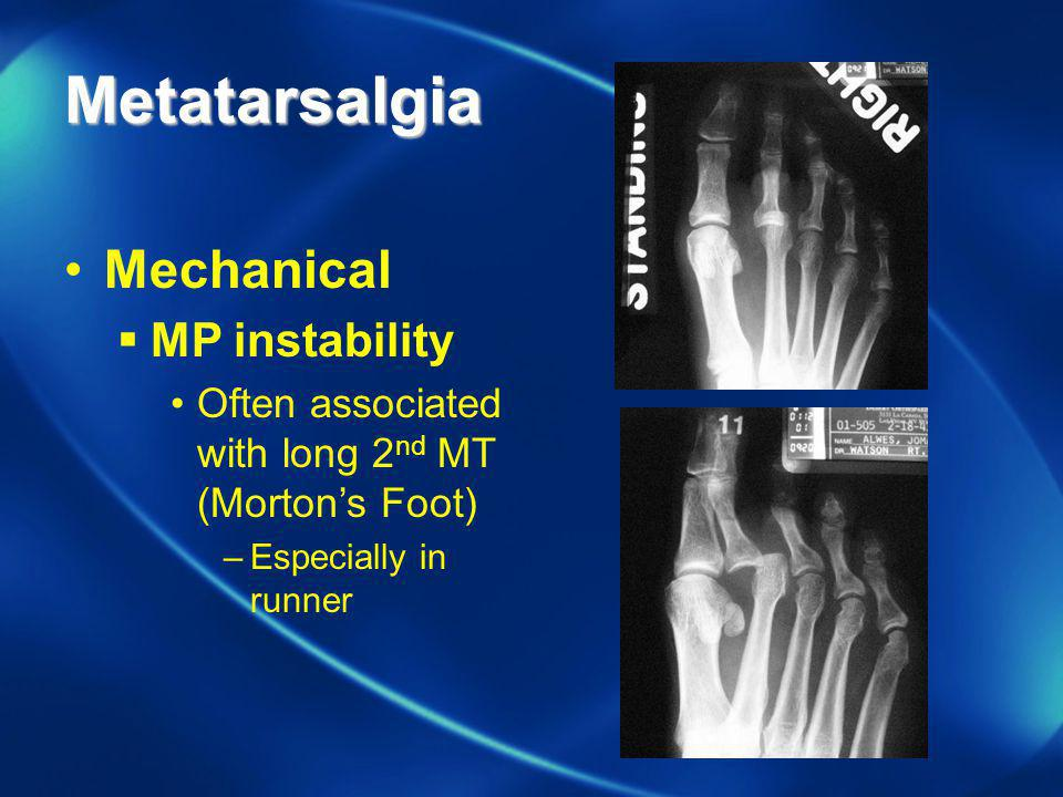Metatarsalgia Mechanical MP instability