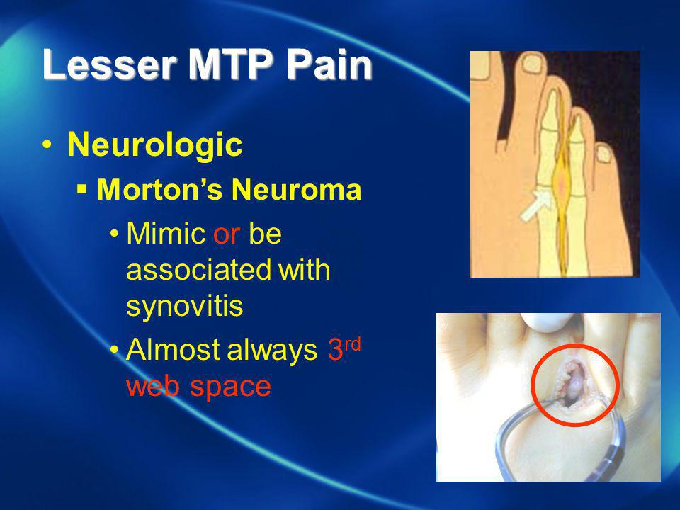 Lesser MTP Pain Neurologic Morton's Neuroma