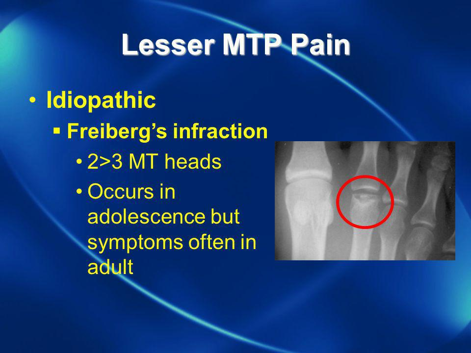 Lesser MTP Pain Idiopathic Freiberg's infraction 2>3 MT heads