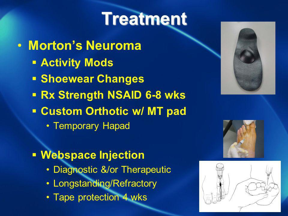 Treatment Morton's Neuroma Activity Mods Shoewear Changes