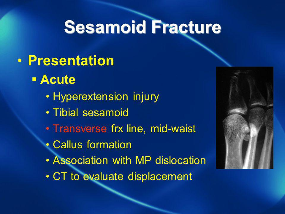 Sesamoid Fracture Presentation Acute Hyperextension injury