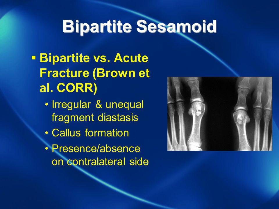 Bipartite Sesamoid Bipartite vs. Acute Fracture (Brown et al. CORR)