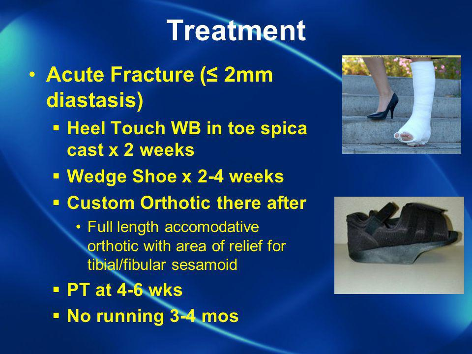 Treatment Acute Fracture (≤ 2mm diastasis)