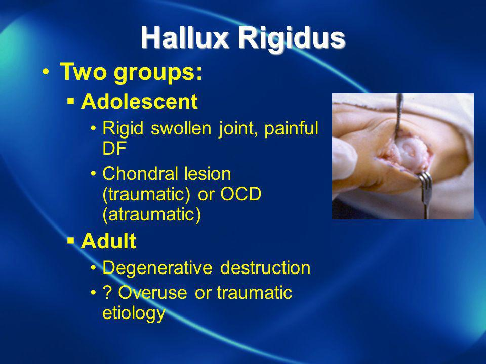 Hallux Rigidus Two groups: Adolescent Adult