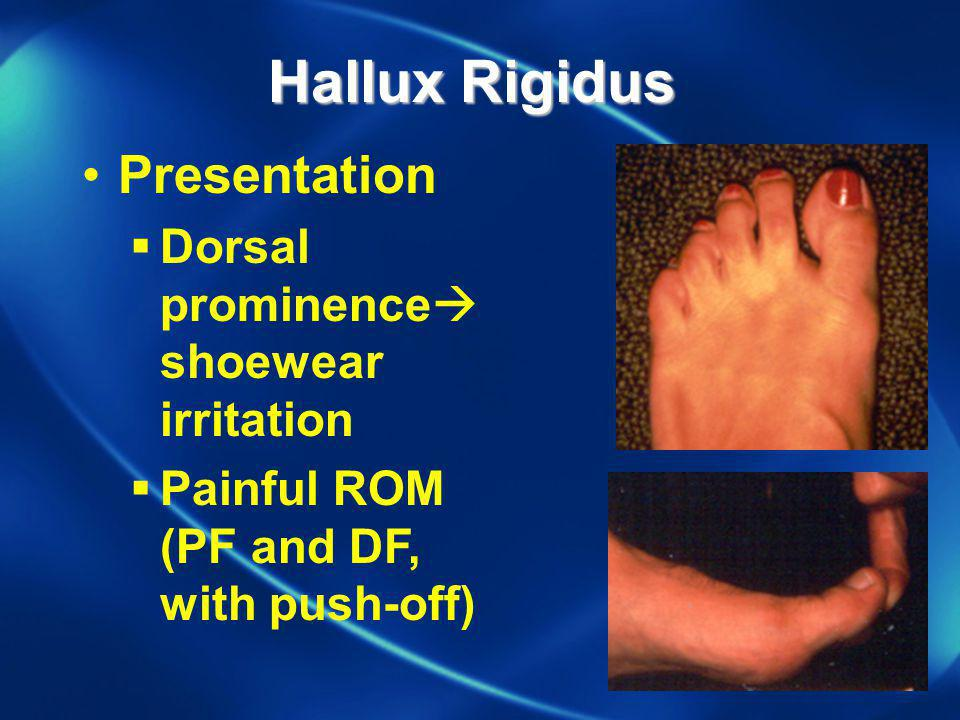 Hallux Rigidus Presentation Dorsal prominenceshoewear irritation