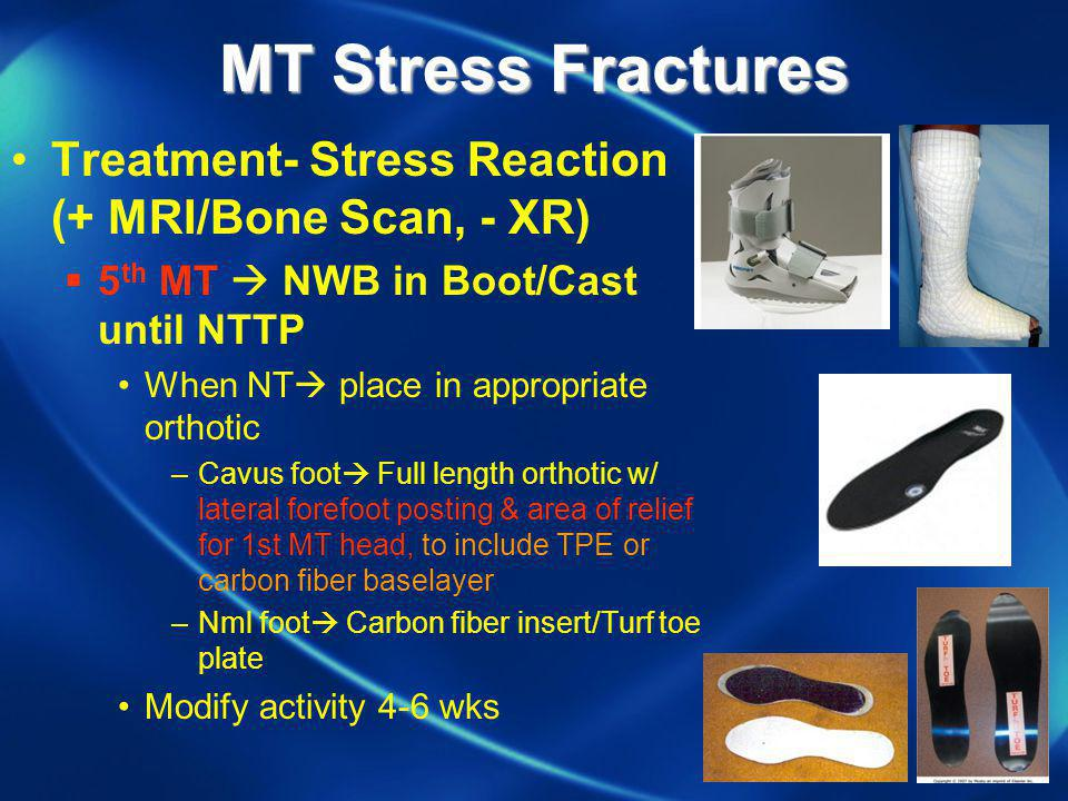 MT Stress Fractures Treatment- Stress Reaction (+ MRI/Bone Scan, - XR)