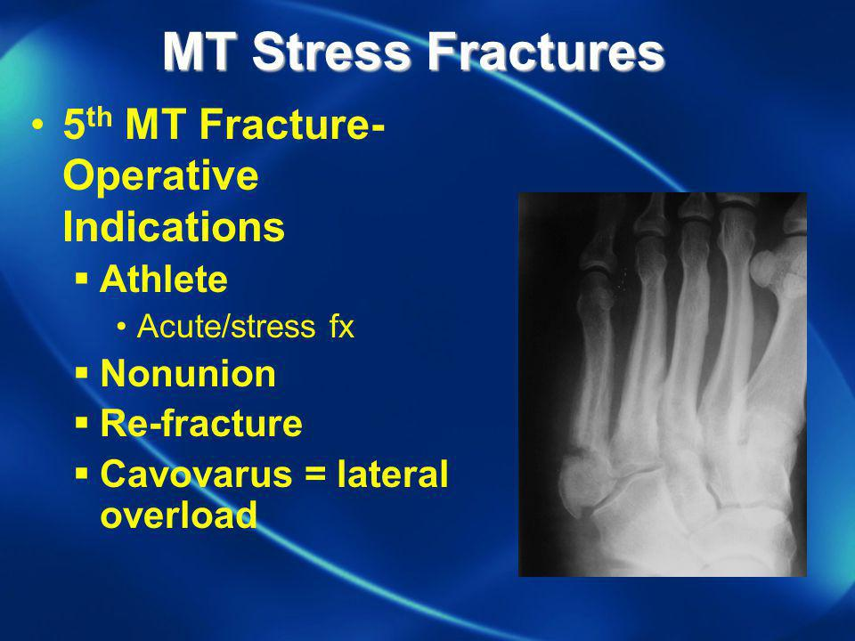MT Stress Fractures 5th MT Fracture-Operative Indications Athlete