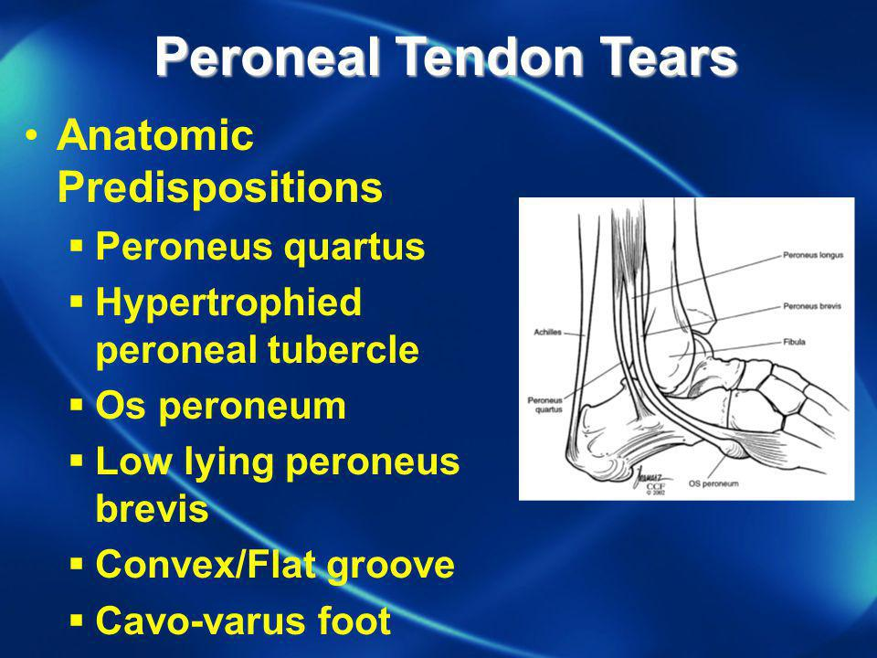 Peroneal Tendon Tears Anatomic Predispositions Peroneus quartus