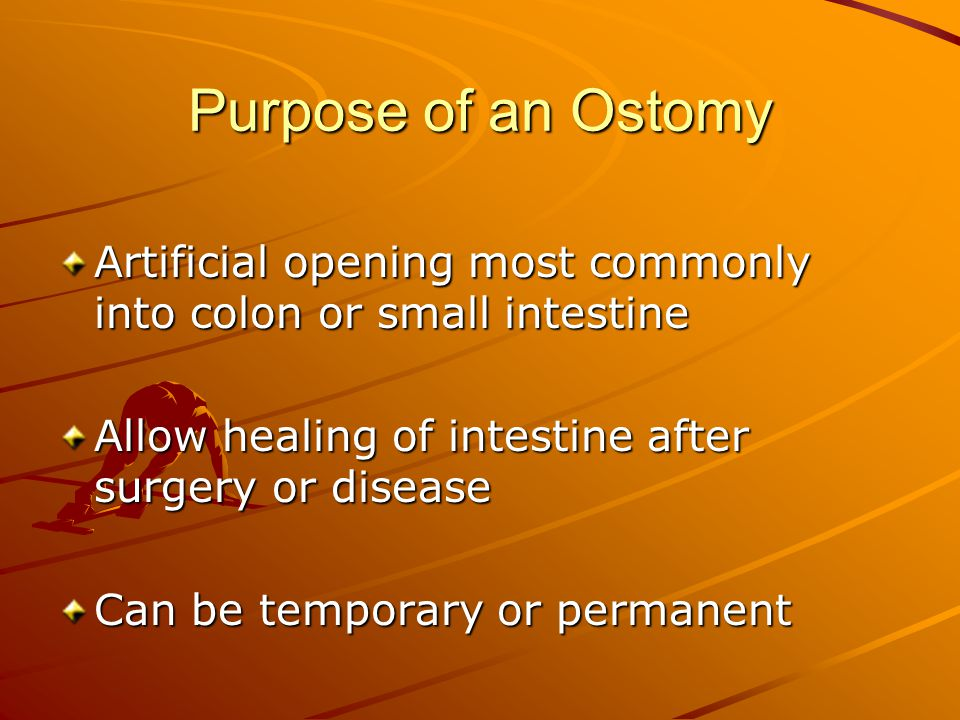 Purpose of an Ostomy Artificial opening most commonly into colon or small intestine. Allow healing of intestine after surgery or disease.