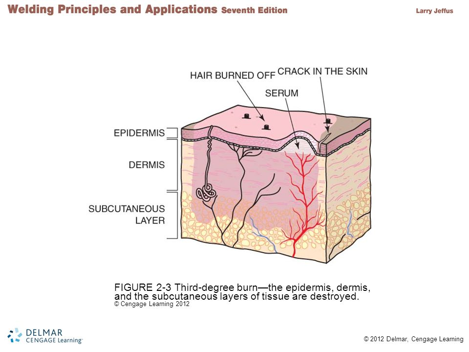 FIGURE 2-3 Third-degree burn—the epidermis, dermis, and the subcutaneous layers of tissue are destroyed.