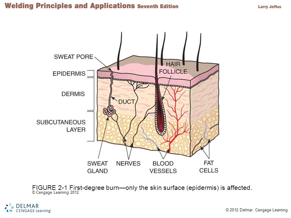 FIGURE 2-1 First-degree burn—only the skin surface (epidermis) is affected.