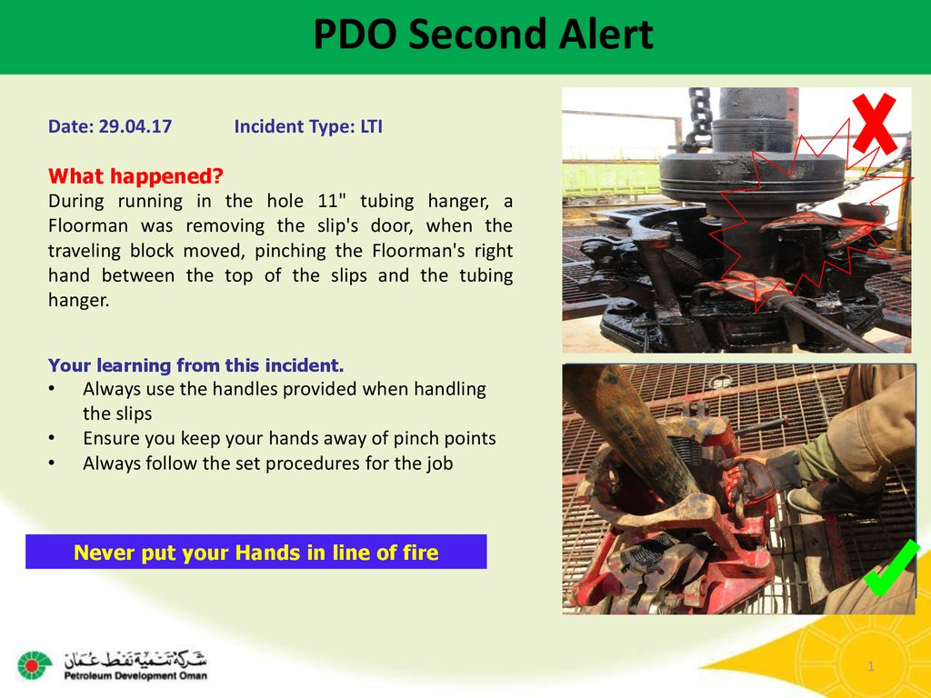 Never put your Hands in line of fire - ppt download
