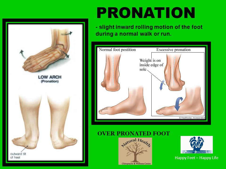 PRONATION - slight inward rolling motion of the foot during a normal walk or run. OVER PRONATED FOOT.