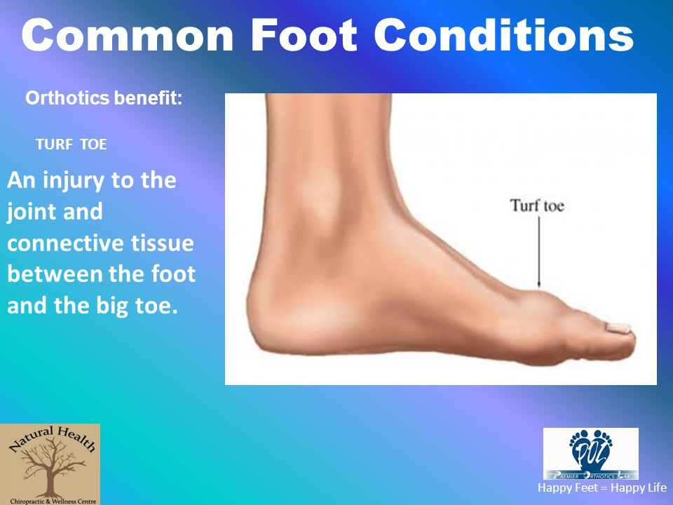 Common Foot Conditions