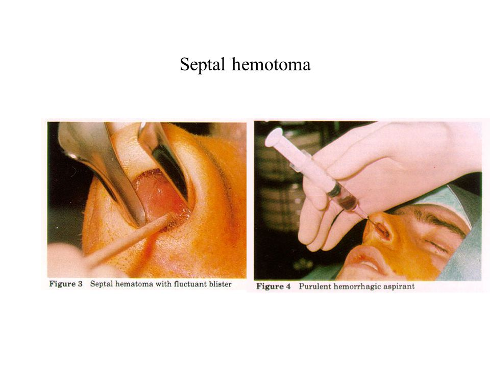 Septal hemotoma