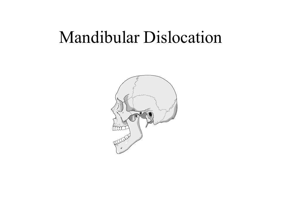 Mandibular Dislocation