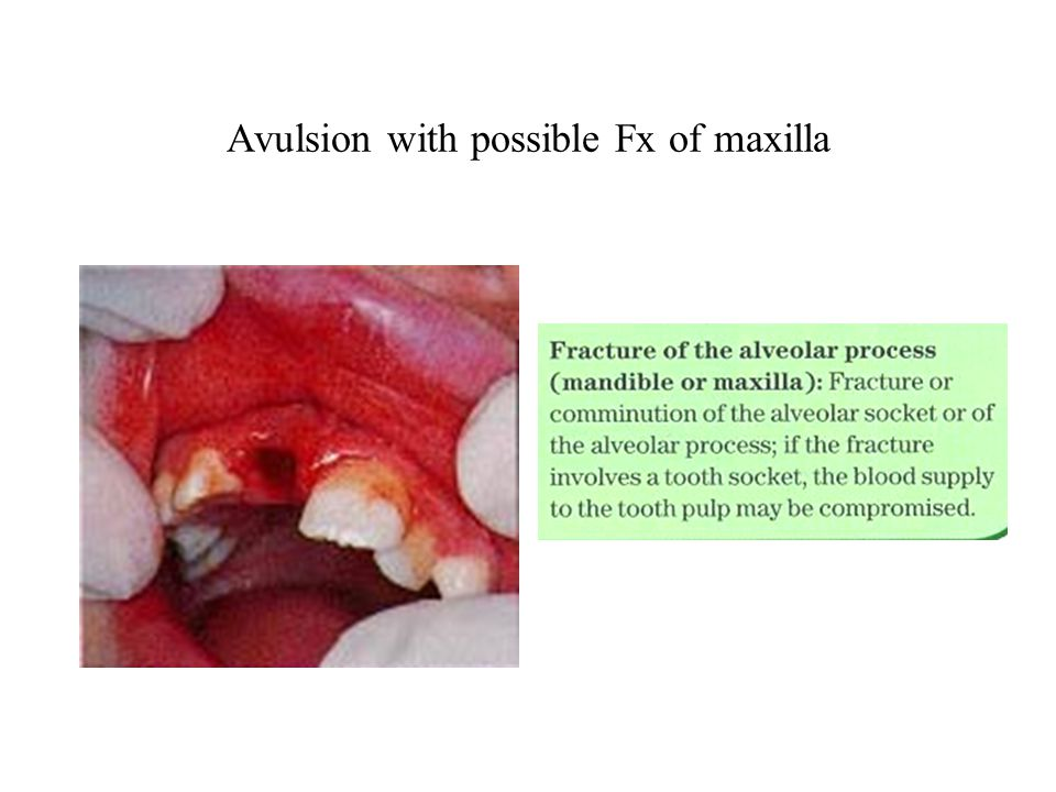 Avulsion with possible Fx of maxilla