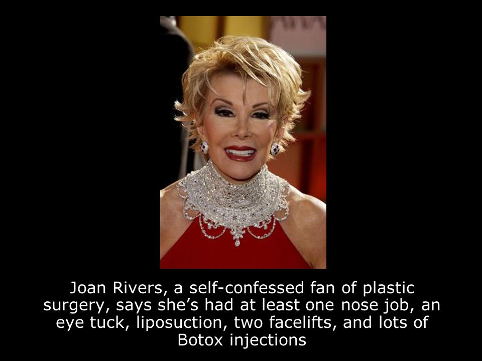 Joan Rivers, a self-confessed fan of plastic surgery, says she's had at least one nose job, an eye tuck, liposuction, two facelifts, and lots of Botox injections