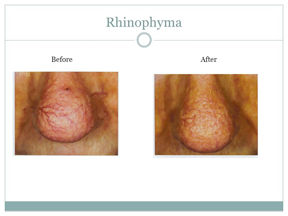 Rhinophyma Before After