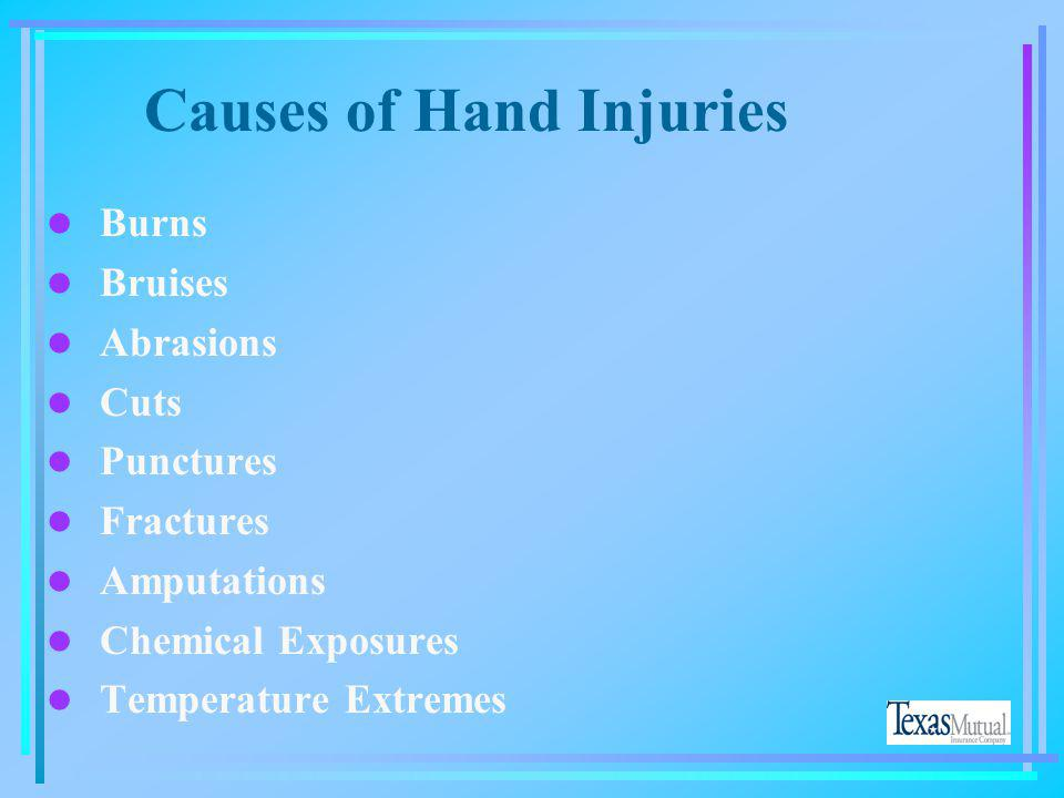 Causes of Hand Injuries