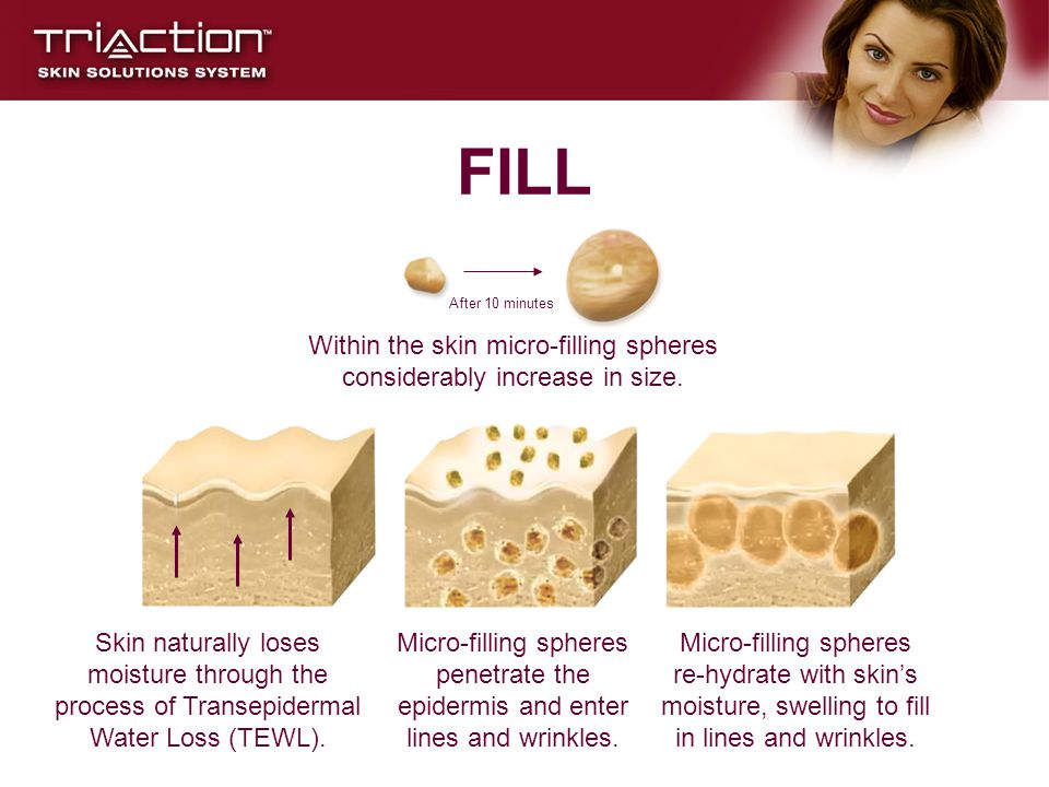 Within the skin micro-filling spheres considerably increase in size.