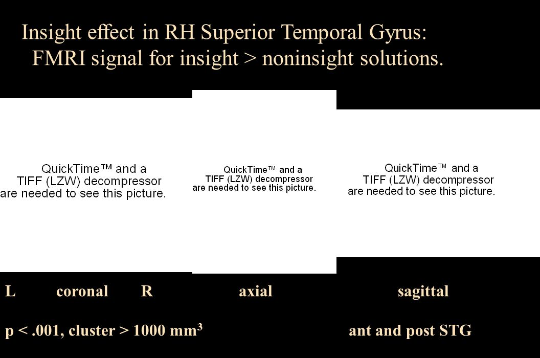 Insight effect in RH Superior Temporal Gyrus: