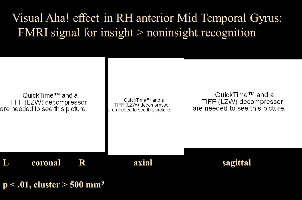 Visual Aha! effect in RH anterior Mid Temporal Gyrus: