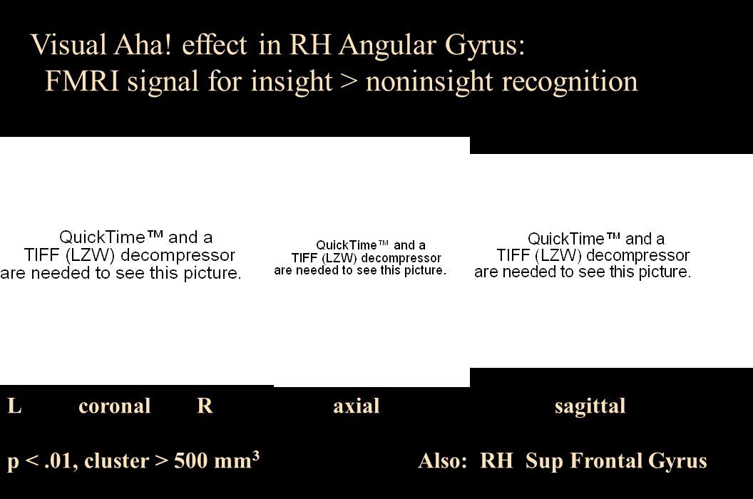 Visual Aha! effect in RH Angular Gyrus: