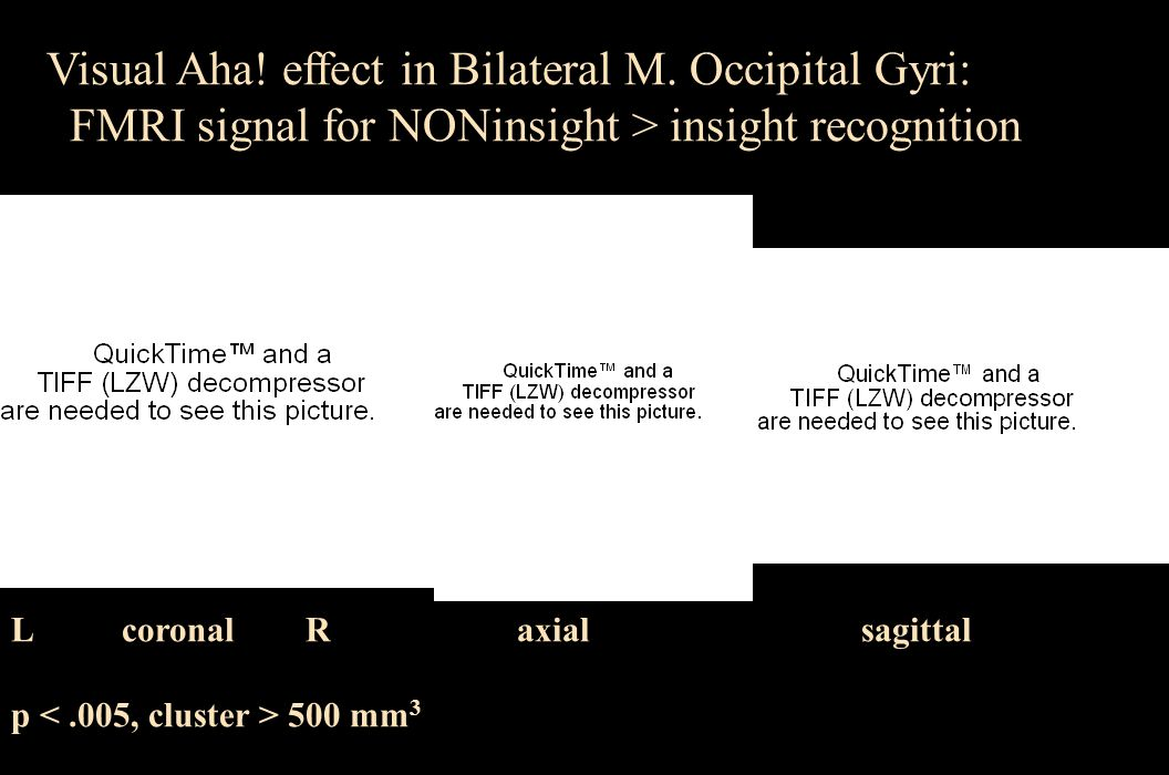 Visual Aha! effect in Bilateral M. Occipital Gyri: