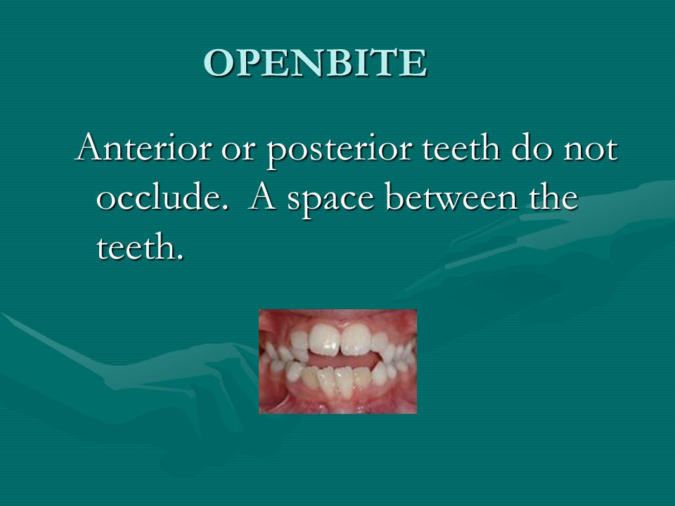OPENBITE Anterior or posterior teeth do not occlude. A space between the teeth.